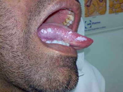 White Patches Inside Your Mouth