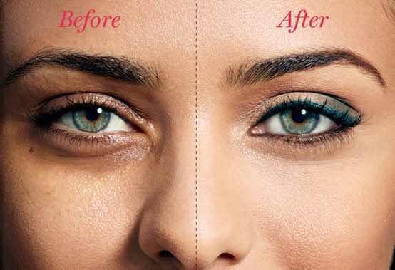 Natural Home Remedies for Caring Sagging Skin Under The Eyes